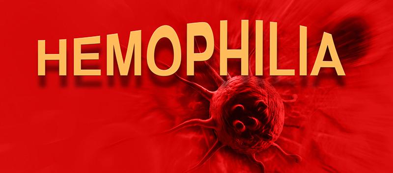 hemophilia a summary