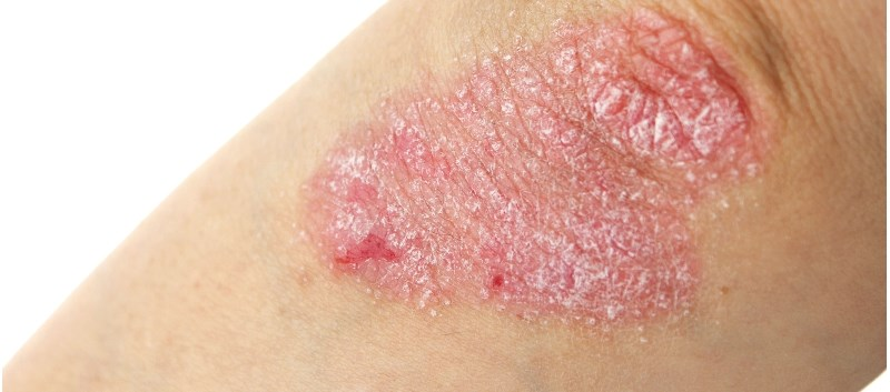 The spray is indicated for the treatment of plaque psoriasis in adults