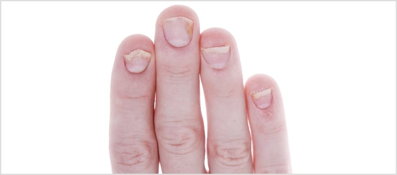 Treatment Options for Patients with Nail Psoriasis