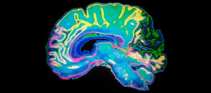 Patients with Lewy body dementia generally didn't lose volume in hippocampus