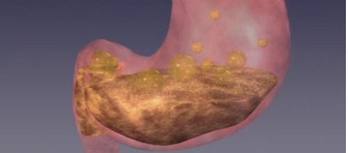Intranasal Metoclopramide Evaluated for Diabetic Gastroparesis in Women