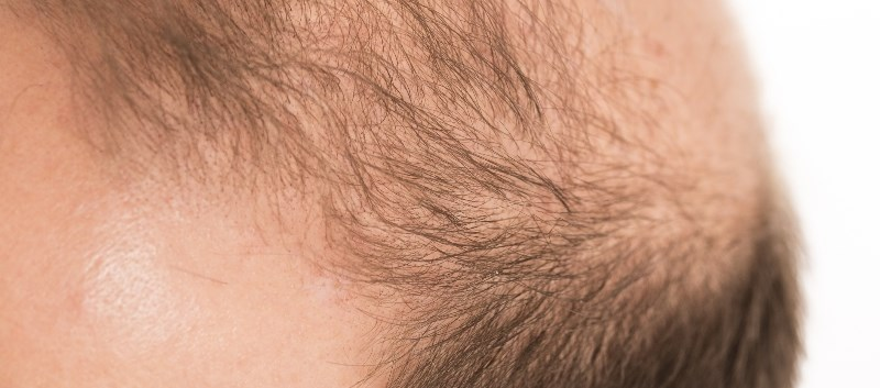 Dietary Supplement May Promote Hair Growth in Men