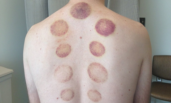 Experts reveal Olympic swimmers' 'cupping' therapy method