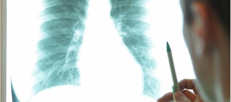 Inhaled Antifungal Granted Orphan Drug Status for Cystic Fibrosis
