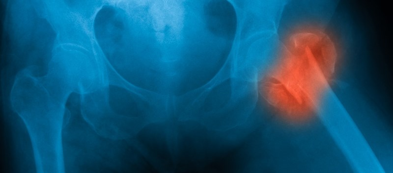 No increase in risk of any fracture, osteoporotic or hip fractures with continuous long-term use