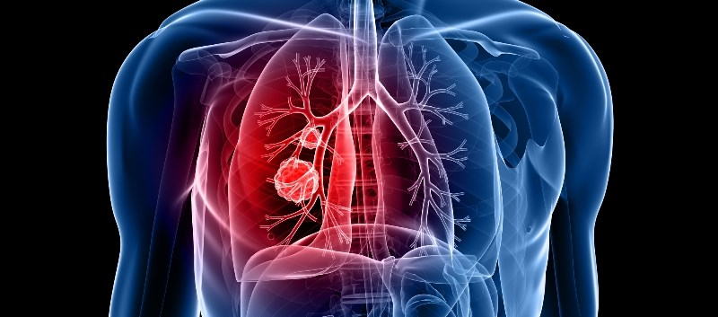 The approval marks the first checkpoint inhibitor to be approved for first-line treatment of lung cancer