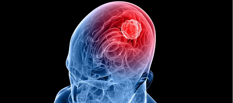 Wearable Device Plus Temozolomide Tx May Improve Survival in Glioblastoma