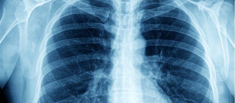 CTP-656 is being investigated in a Phase 2 trial evaluating the drug in cystic fibrosis patients