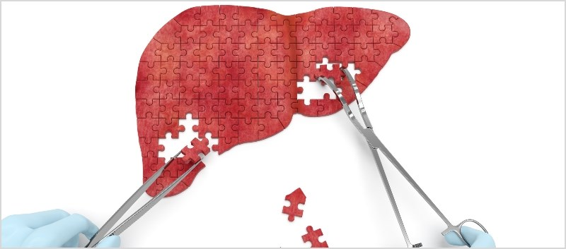 Low Risk of Hepatic Decompensation With PrOD Regimen, Study Finds