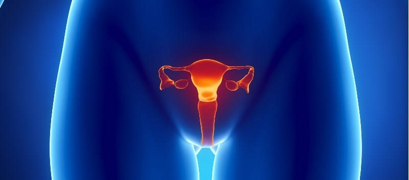 Hysterectomy can be avoided in about two-thirds of uterine artery embolization-treated patients