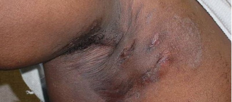 Combo Treatment May Benefit Patients with Hidradenitis Suppurativa