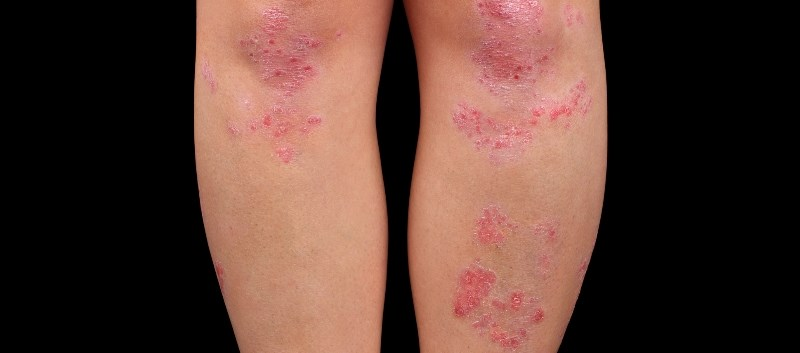 Secukinumab Efficacy Assessed in Psoriatic Arthritis