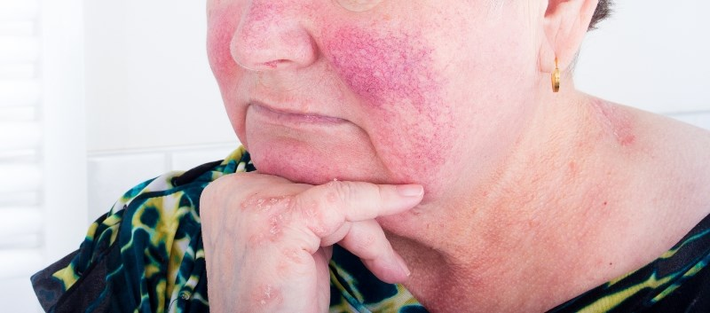 H. pylori eradication leads to improvement in rosacea