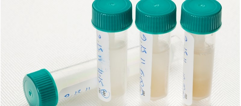 Can a Saliva Test Help Predict Future Alzheimer's Disease?