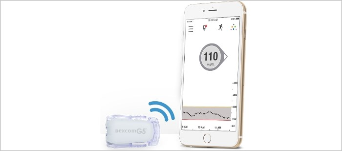 FDA: Dexcom G5 CGM System Can Replace Fingerstick Testing in T2DM Management