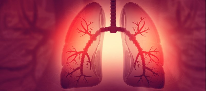 Combo Tx Significantly Improves Lung Function in Cystic Fibrosis Study