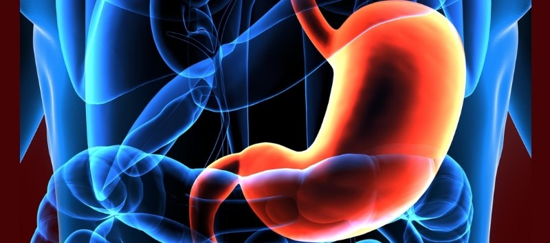 Bariatric Surgery in T2DM: 5-Year Outcome Data