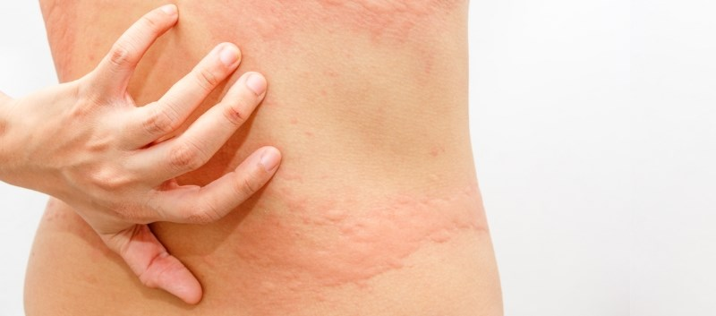 Enrolled patients with chronic idiopathic urticaria were given omalizumab 300mg SC every 4 weeks