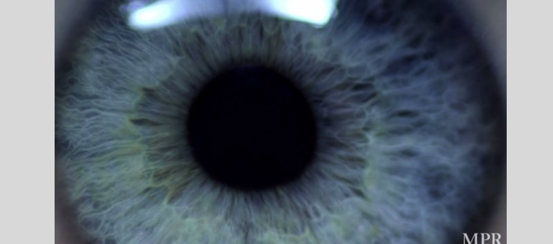 Implantable Artificial Retina in the Works