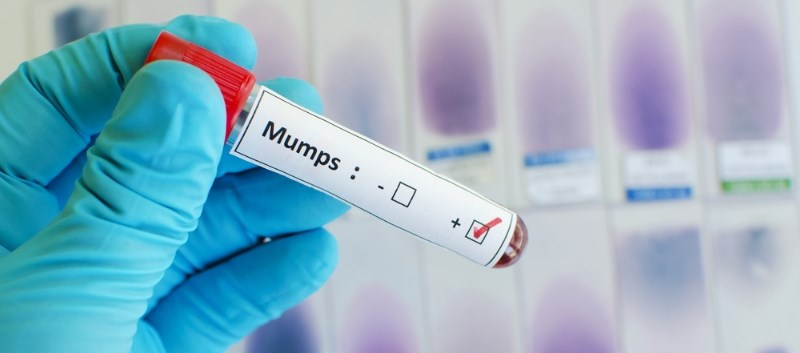 Complications After Mumps Outbreak Investigated