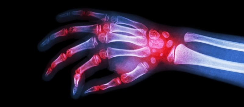 Other study shows drop in mortality attributable to rheumatoid arthritis from 1987 to 2011