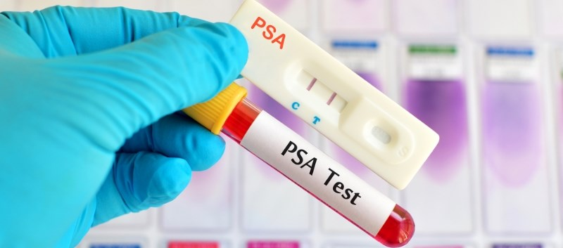 Prostate-Specific Antigen Testing Patterns Examined