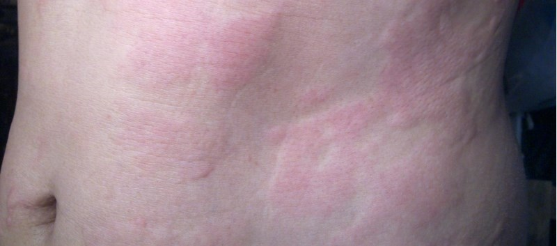 Adding a Steroid May Not be Necessary in Acute Urticaria Management