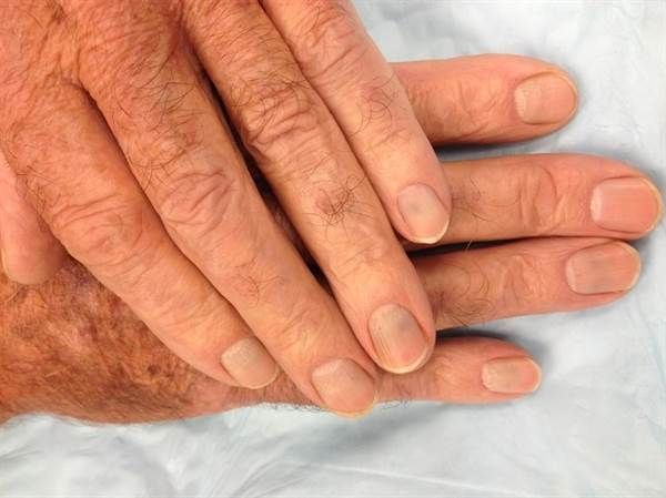 why does gout pain get worse at night of high uric acid xpress foods high in purines chart