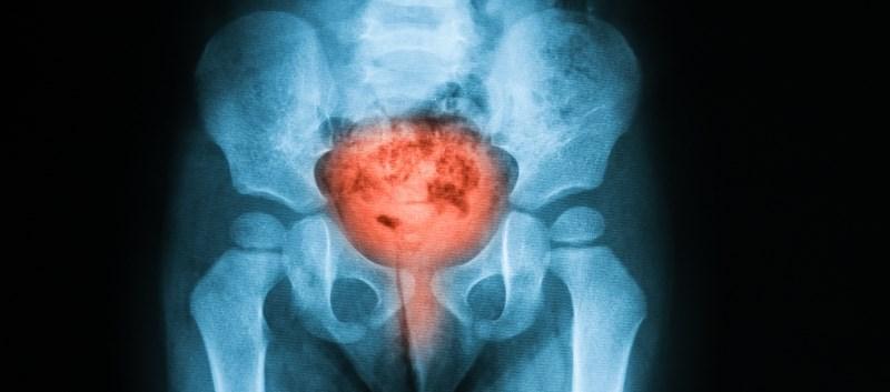 New White Paper on Nonneurogenic Chronic Urinary Retention