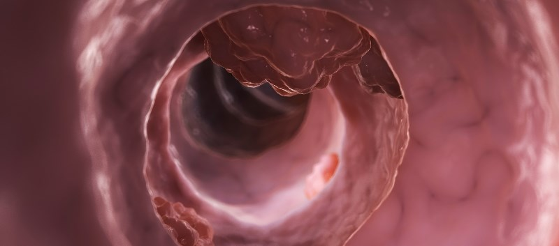 Histamine-Producing Probiotic Shows Promise in Treating Colorectal CA