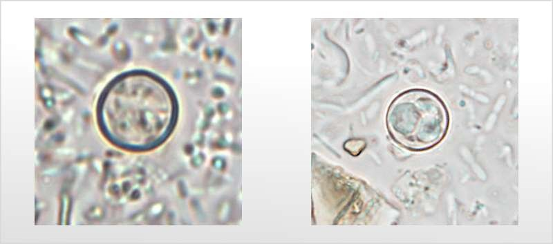 Cases of Cyclosporiasis on the Rise, CDC Warns