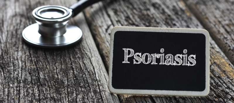 Topical Coal Tar: An Effective Alternative for Psoriasis?