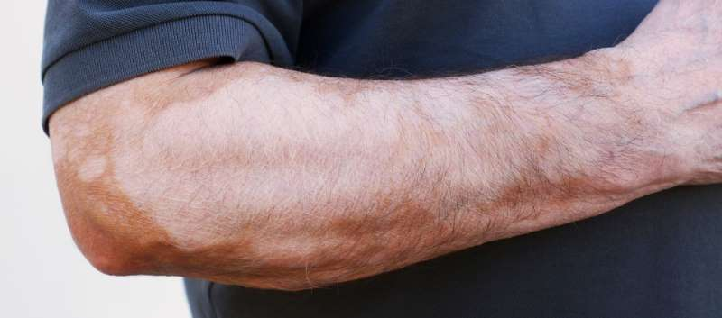 Melanocytes vitiligo