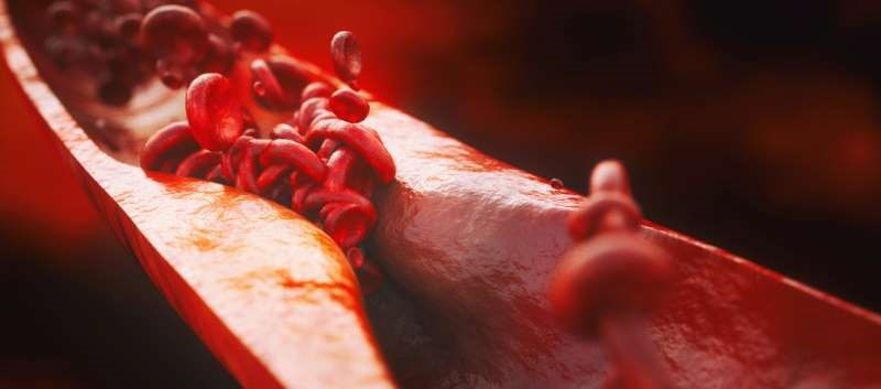 LDL-C independently associated with the presence and extent of atherosclerosis