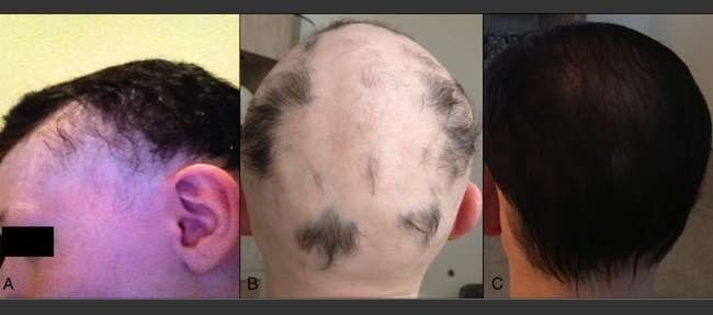 Two cases detail men who experienced hair regrowth following fecal microbiota transplantation. Credit: Rebello et al.