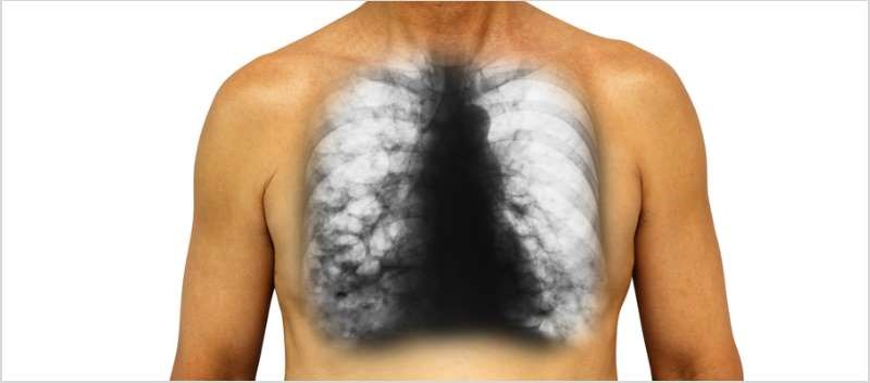 The NDA is for the treatment of non-cystic fibrosis bronchiectasis patients with chronic infections with P. aeruginosa