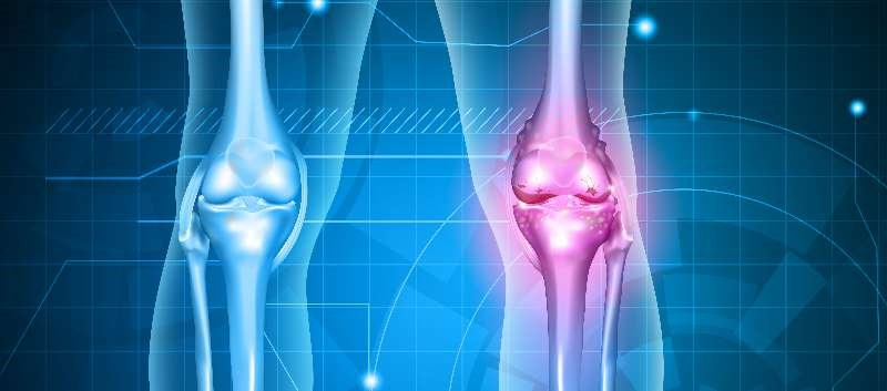 No statistically significant effect on radiographic progression