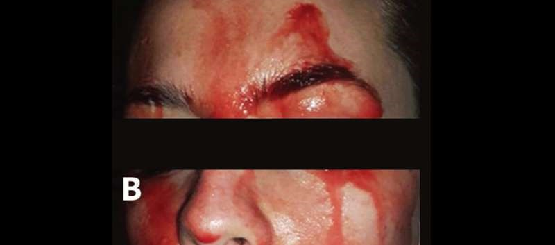 Rare Disorder Causes Patient to Spontaneously 'Sweat Blood'