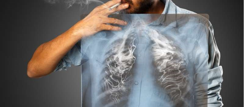 CHEST: New Lung Cancer Screening Guidelines