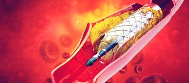 Landmark Study Questions Efficacy of Stenting in Stable Angina