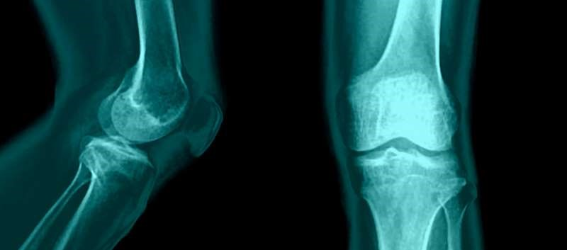 Wnt Pathway Inhibition Alleviates Symptoms of Knee Osteoarthritis