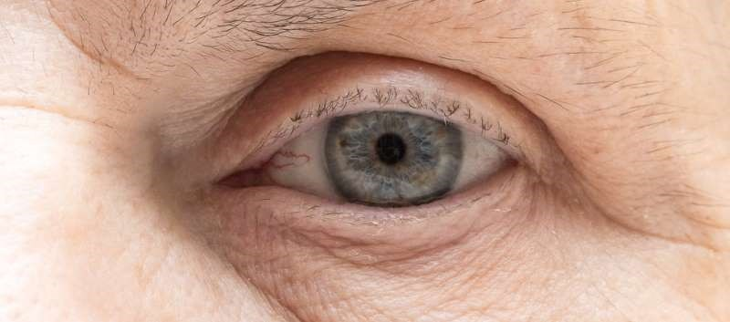 FDA Approves Intraocular Lens That Can Be Adjusted Post-Cataract Surgery