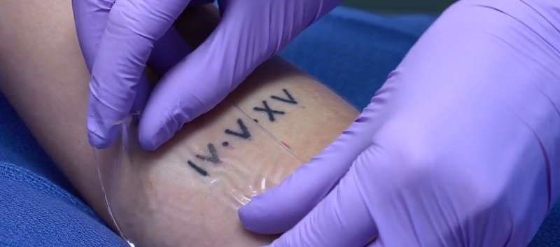 FDA Expands Use of DESCRIBE PFD Patch for Laser Treatment of Tattoos