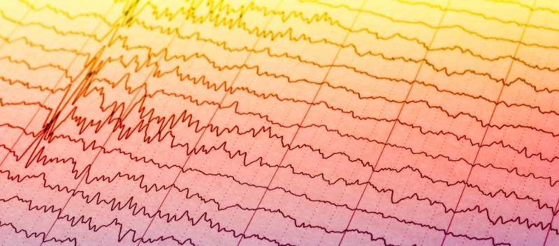 Perampanel as Add-On Tx May Benefit in Severely Refractory Focal Epilepsy