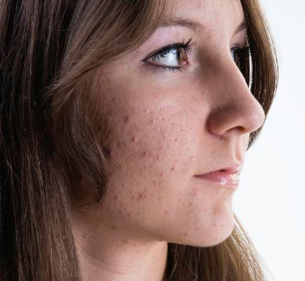 Topical Retinoids for Adult Acne Often Underused with Antibiotic Courses