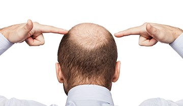 FDA-Approved Drug Class Eyed as Potential Hair Loss Tx