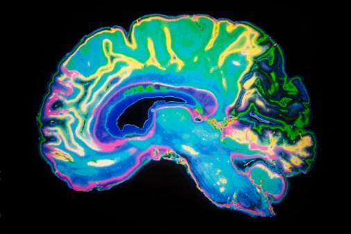 New Dementia Prediction Algorithm Proves Promising Accuracy