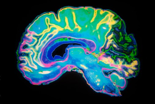 Low Doses of CO May Lessen Brain Damage Post-Hemorrhage