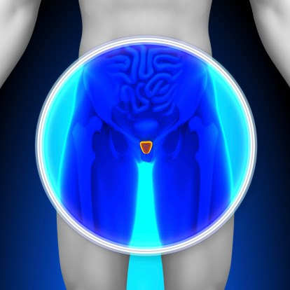 Prostatectomy Cuts Mortality in Early Prostate Cancer
