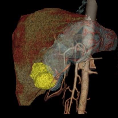 Treatment Options for Gastrointestinal Stromal Tumors